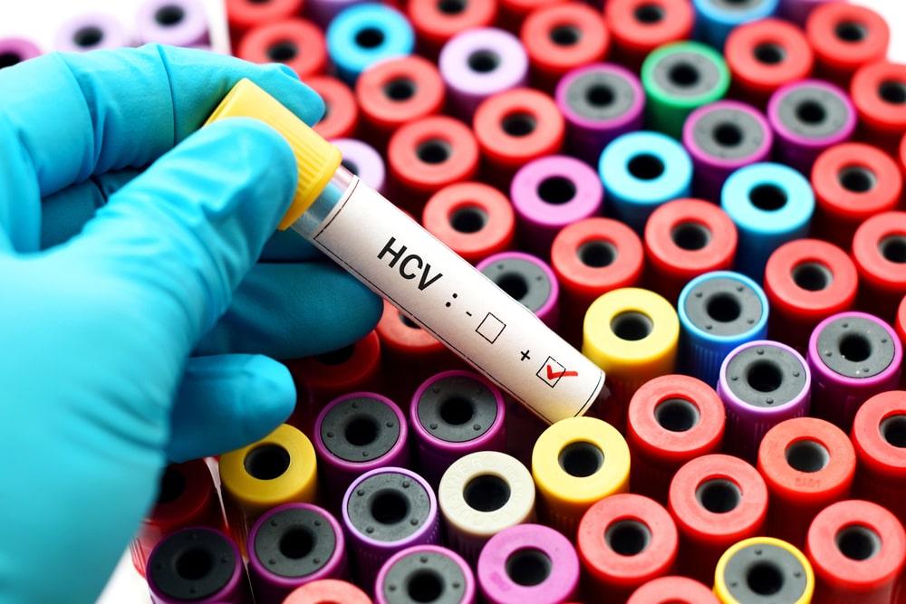 Badanie HCV – czym jest, kiedy się je wykonuje, gdzie można je wykonać?